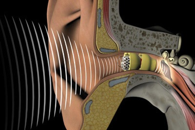 How hearing aid works